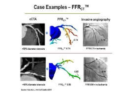 Two case examples of patients with >50% coronary artery stenosis on cCTa but in...