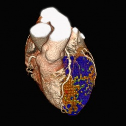 Photo: Toshiba presents advances in Cardiac Imaging at ESC 2012