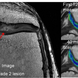 Anatomical and biochemical imaging (in colour) of kneecap cartilage damage