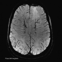 High-res image of the smalles cerebral vessels on submillimetre level with...