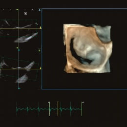 Photo: Toshiba beams in on cardiology ultrasound