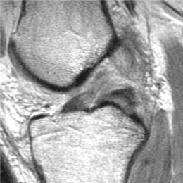 1a. Five days following injury, sagittal MRI image shows mid-substance...