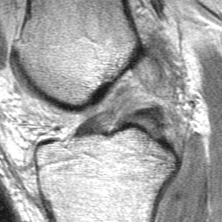 The knee – correlations of MRI and arthroscopy