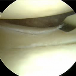 2b. Arthroscopic image confirms the peripheral, vertical longitudinal tear of...