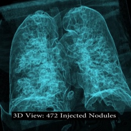 The 3-D visualisation shows the illegitimately added nodules, misleading human...