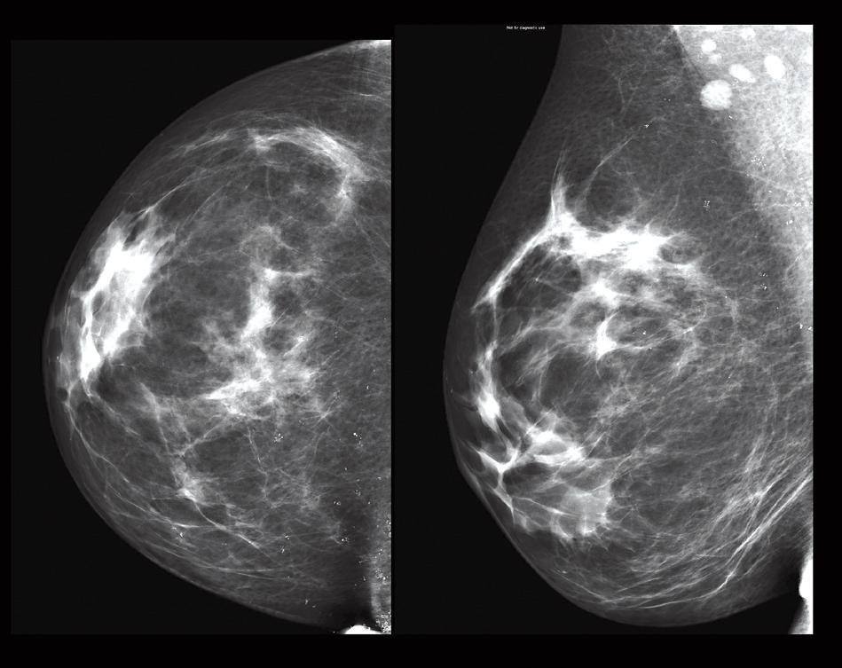 Ein Plädoyer für Brustkrebs-Screening mit MRT