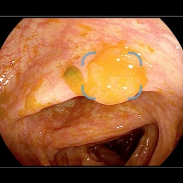 Serrated polyp covered with stool