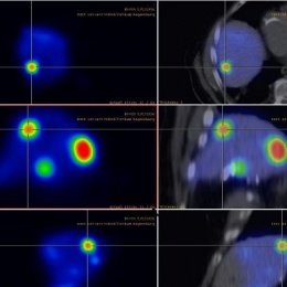 SPECT-CT Tc99m MAA.