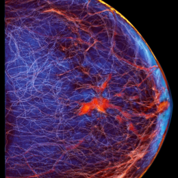 View of the breast and breast tissue. The red spot at center is a tumor in the...