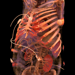 Skeleton with skull, ribs, sternum and pelvis. The heart is visible behind the...