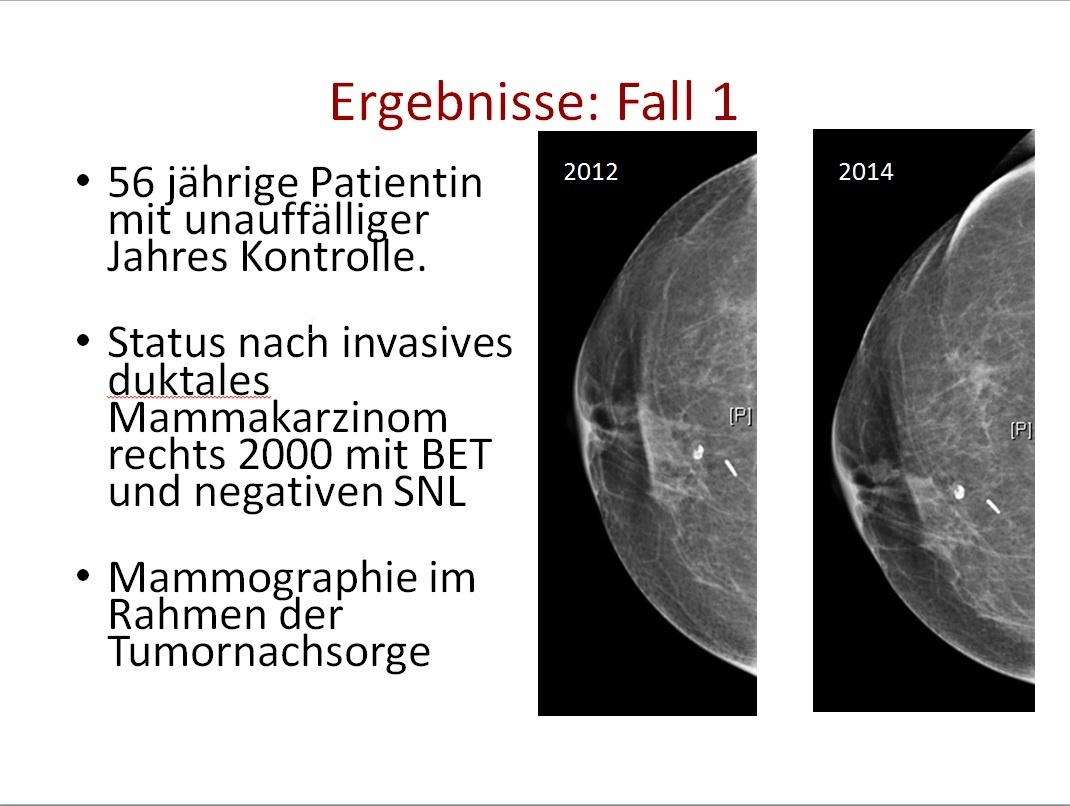 Brustkrebsscreening im Drei-Länder-Vergleich auf healthcare-in ...
