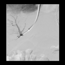 Successful puncture of a portal vein branch through the liver parenchyma.