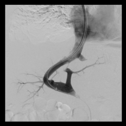 Successful pressure reduction in the portal vein system through the insertion...