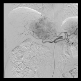 Classic tumour blush in angiography.