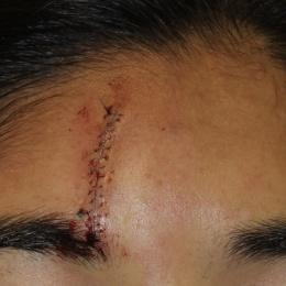 A scar immediately after surgery