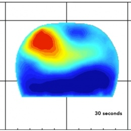 Photo: Breast cancer: Near-infrared light shows chemo beneficiaries