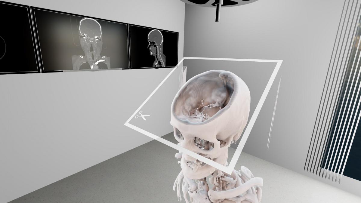 VR bietet mehr als 'hübsche\' Radiologie-Aufnahmen auf healthcare-in ...