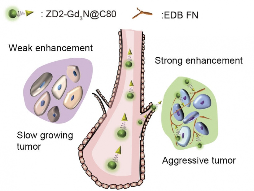 Illustration of the concept of work. The targeted contrast agent, ZD2-Gd3N@C80,...