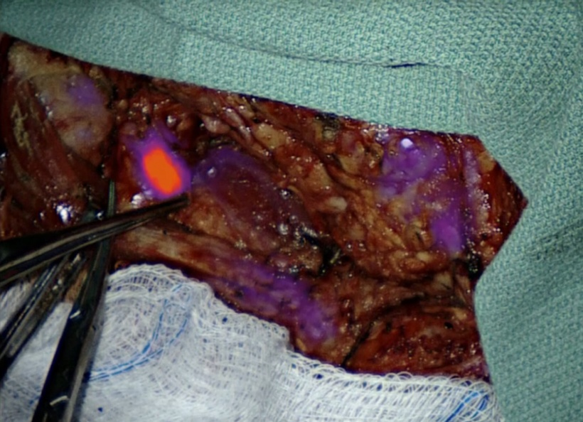A lymph node glows during surgery.