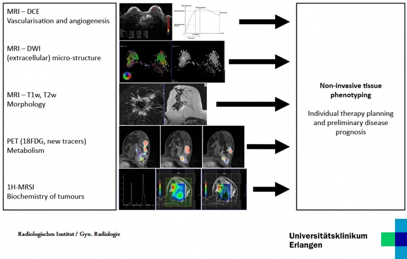 Parametric/molecular imaging in breast diagnostics