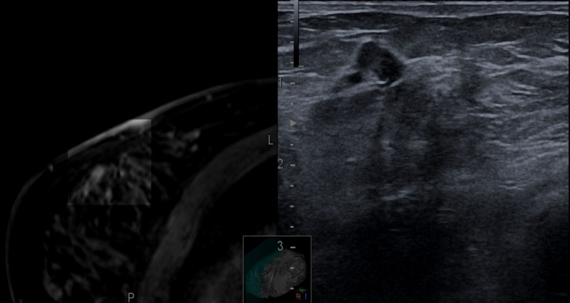Image fusion of MRI with ultrasound for IEL