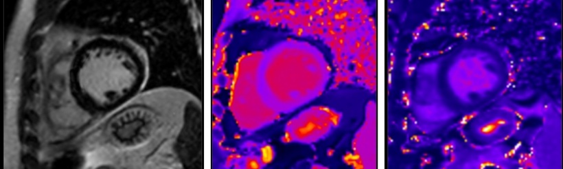 Where standard MR imaging (left) cannot detect anomalies, new mapping...