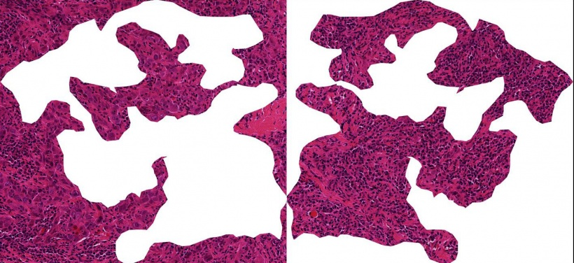 A section through breast cancer tissue: When immune cells (small dark cells)...