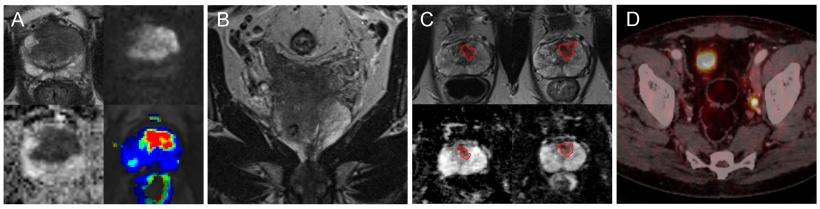 prostate 3t mri versus biopsy