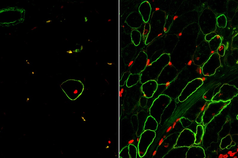 Skeletal muscle cells isolated using the ERBB3 and NGFR surface markers (right)...