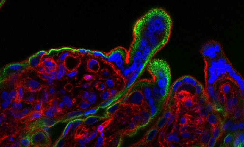 When human placental tissue (fluorescence microscopy image shown) is exposed to...