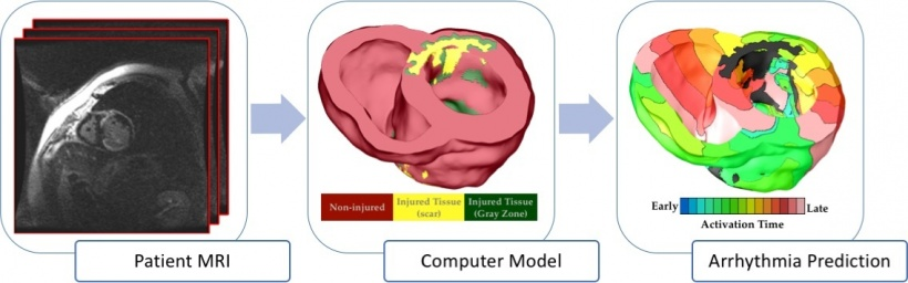 The virtual heart arrhythmia risk predictor. Patient-specific heart models are...