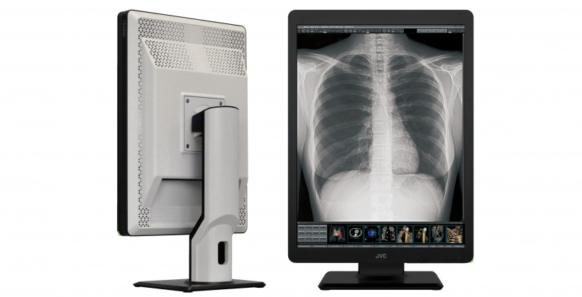 New monitor generation for better diagnosis