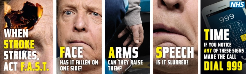 If you suspect a stroke, act F.A.S.T.!