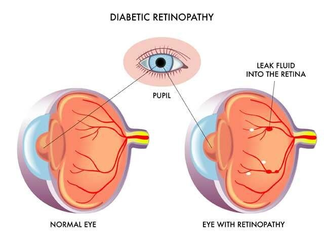 Annual dilated eye exams key in preventing diabetic eye disease