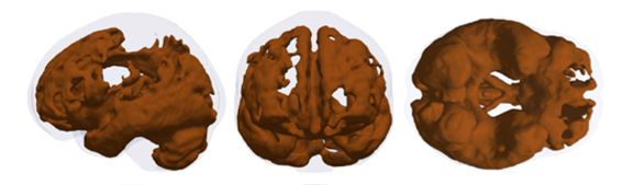 Brain regions showing age-related atrophy from the initial 5,000 individuals...