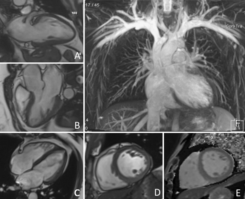 Examples of MR images acquired as part of the cardiovascular protocol: A–C:...