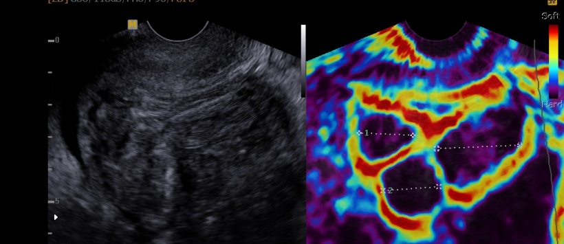 Myomen presenting during sonoelastography and a normal grey echo.