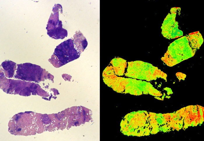 A traditional stained biopsy (left) and a Digistain view (right)