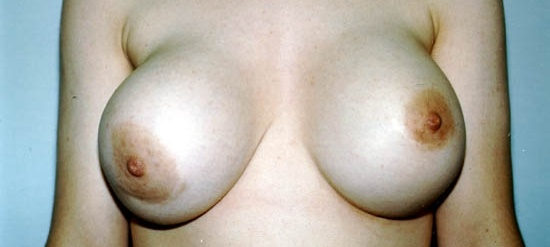 Can breast implants increase lymphoma risk?