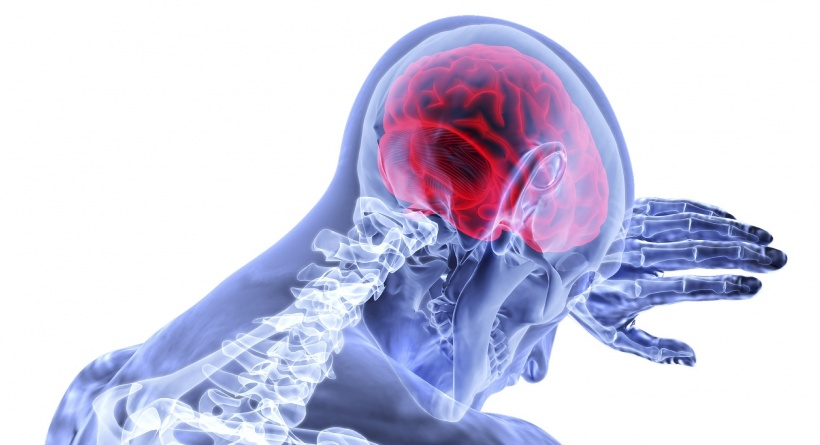 Stroke: largest-ever genetic study provides new insight
