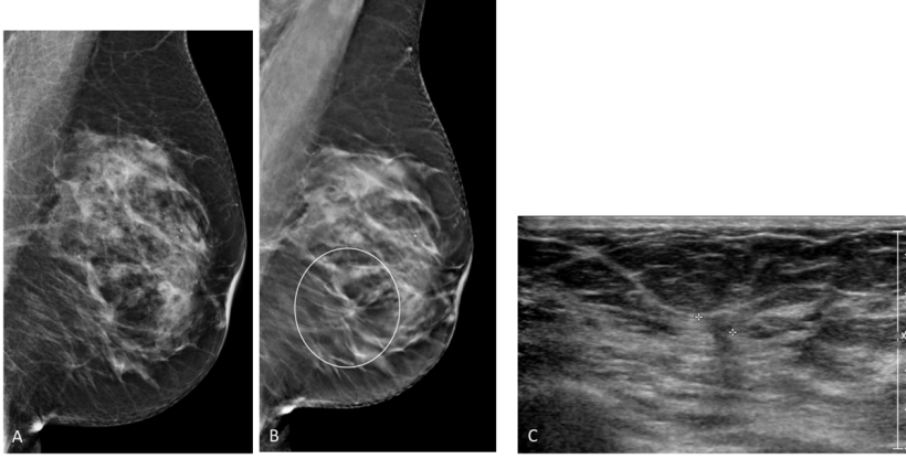 Mediolateral oblique views of left breast in a 67-year-old woman. A, Mammogram...