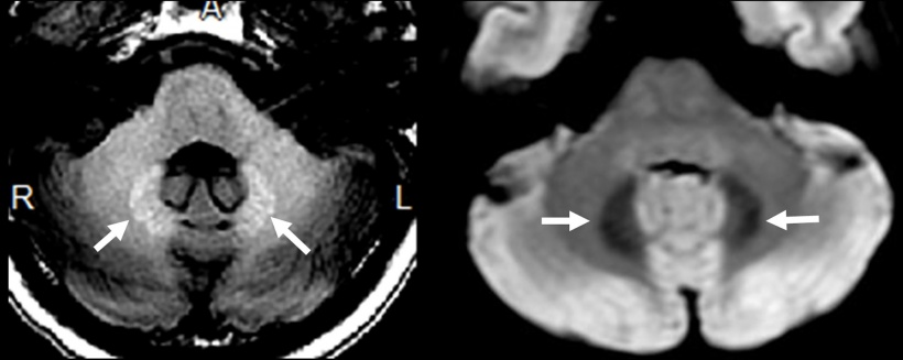 Asymptomatic metal deposition in the dentate nucleus, gadolinium deposition on...