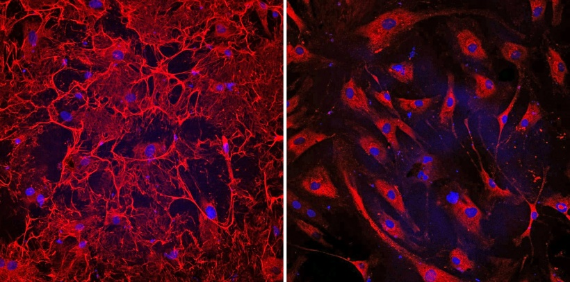 Right image: This microscopic image shows donated fibrotic heart cells from a...