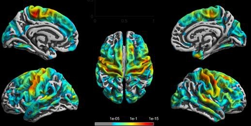 cortical atrophy in ms patients