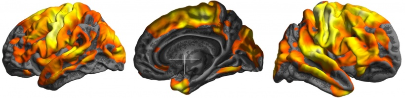 brain images of ms patients
