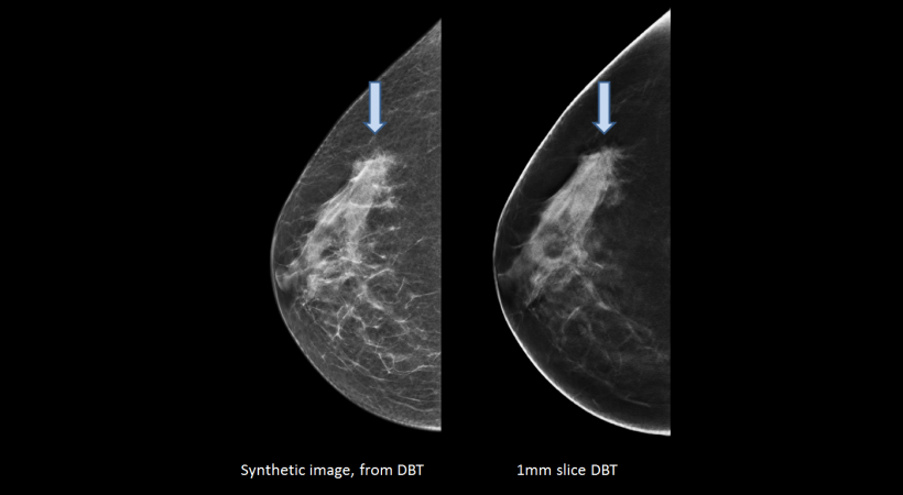 mammography image comparison of digital mammography and tomosynthesis