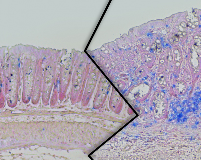 colon tissue from overweight and normal lab mice