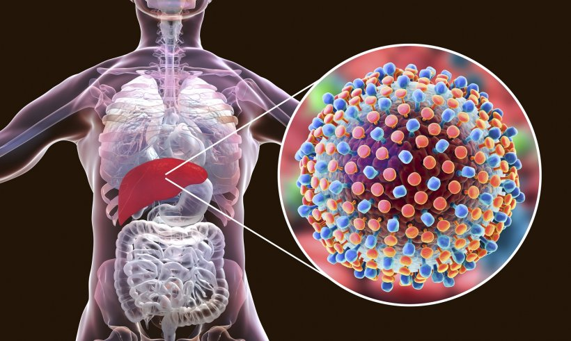 3d schematic of hepatitis in the human liver