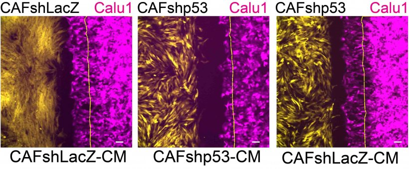 effects of p53 in cancer-associated fibroblasts on cancer cell migration