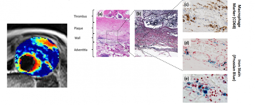 Representative histological sections of the aortic wall.  A: Haematoxylin and...